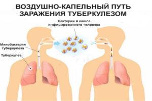 Воздушно-капельный путь передачи туберкулеза