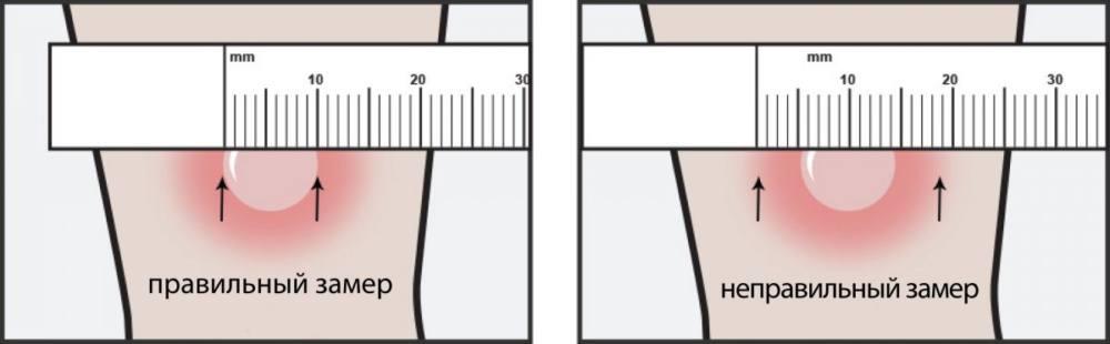Как измерить манту?