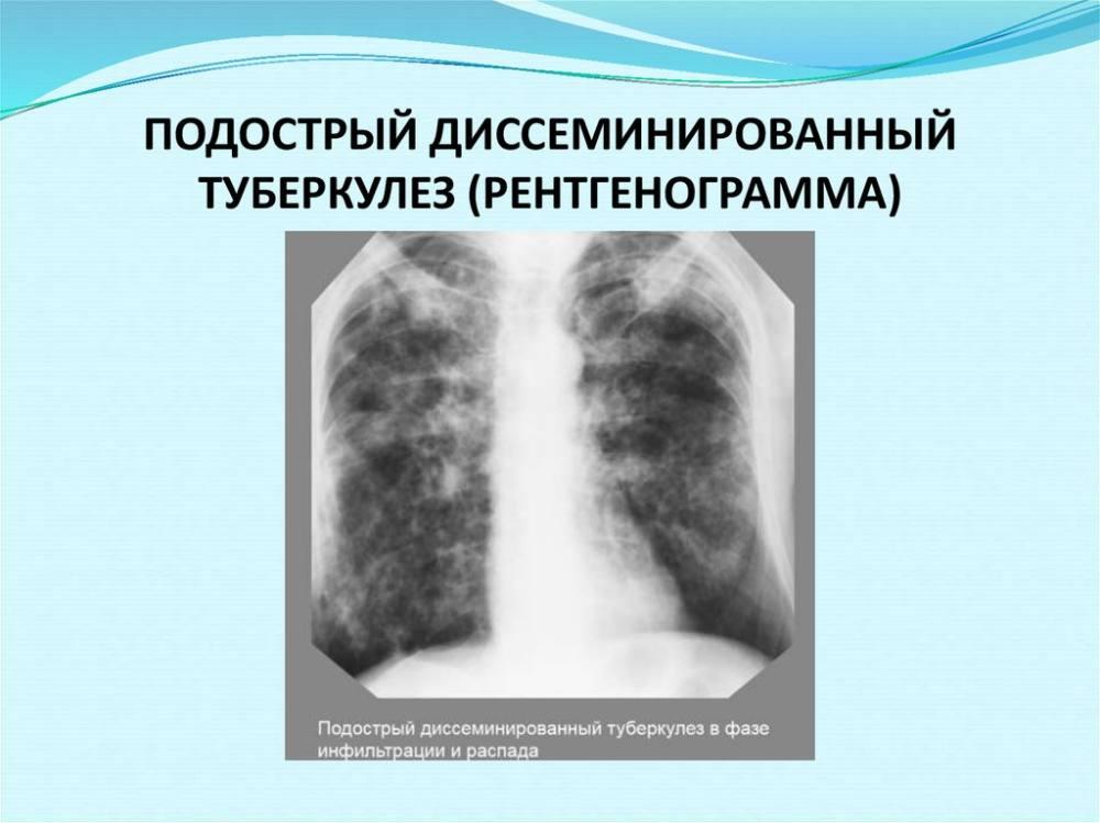 Туберкулез диссеминированной формы