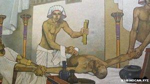 История Туберкулеза