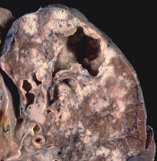 Туберкулез почек
