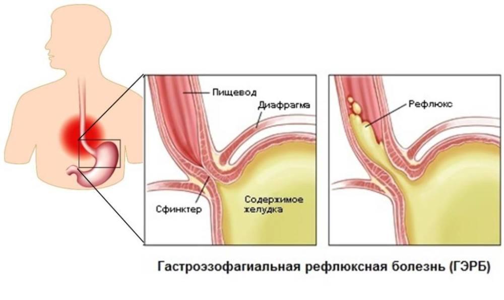 кислотный рефлюкс и причина его появления