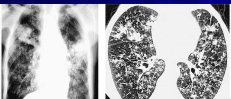 Диссеминированный туберкулез легких