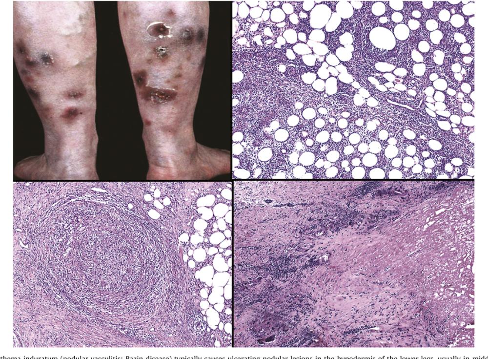 Язвенный туберкулёз кожи 2