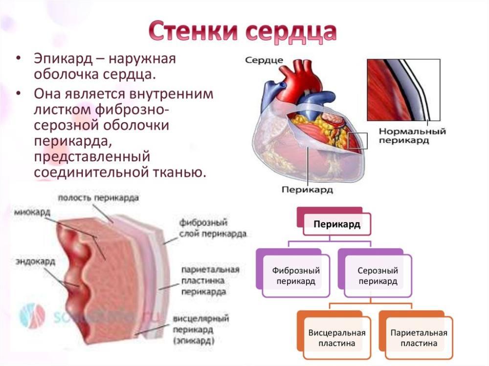 Перикардит туберкулезной формы