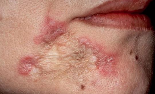 Происхождение туберкулеза кожи