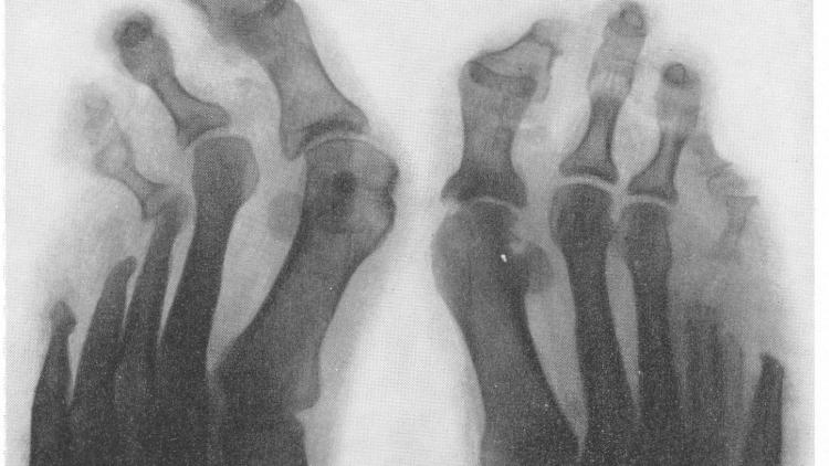 Туберкулез костей - снимок ступней