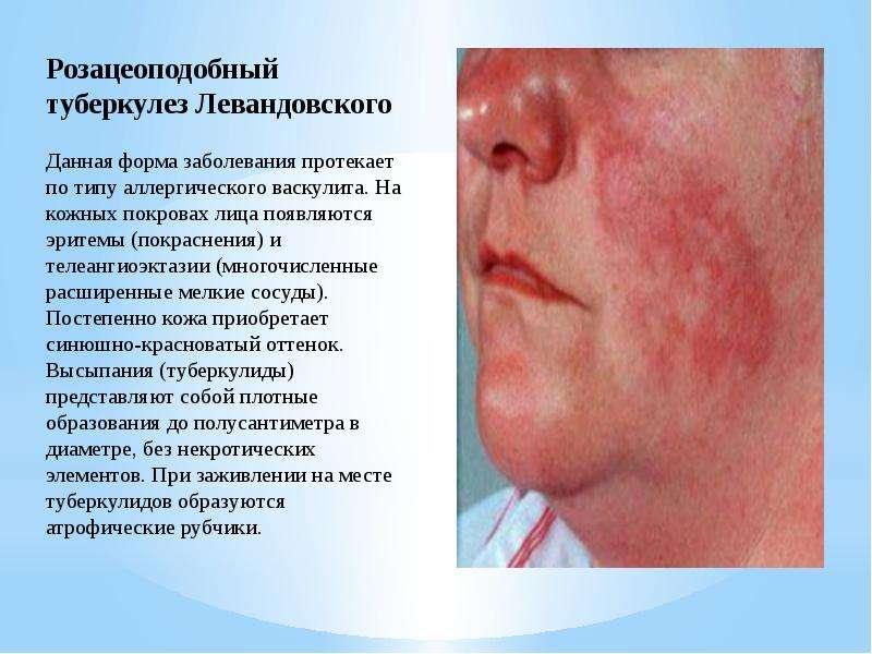 Туберкулез кожного покрова