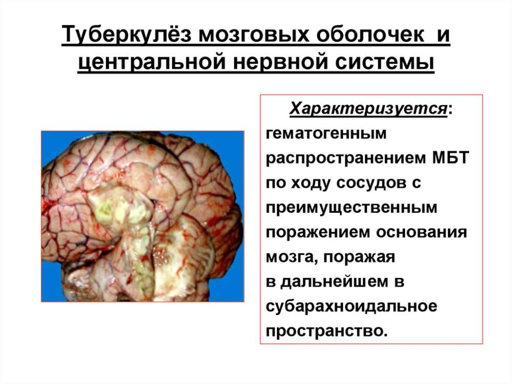 Туберкулез мозговых оболочек и центральной нервной системы