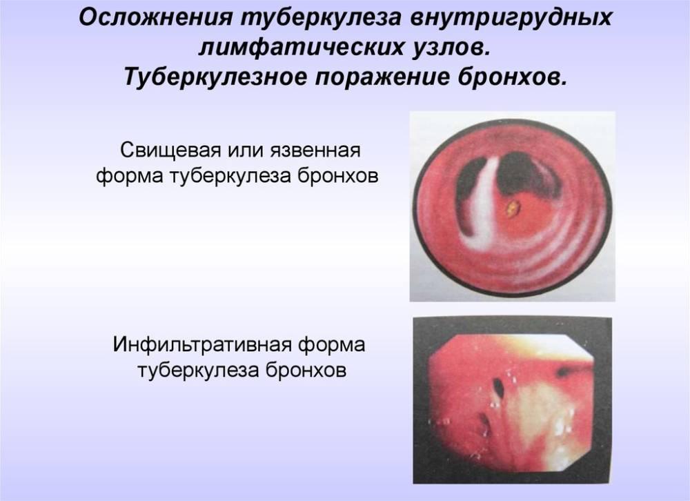 Туберкулез бронхов
