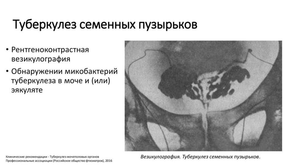 Туберкулёз семенных пузырьков