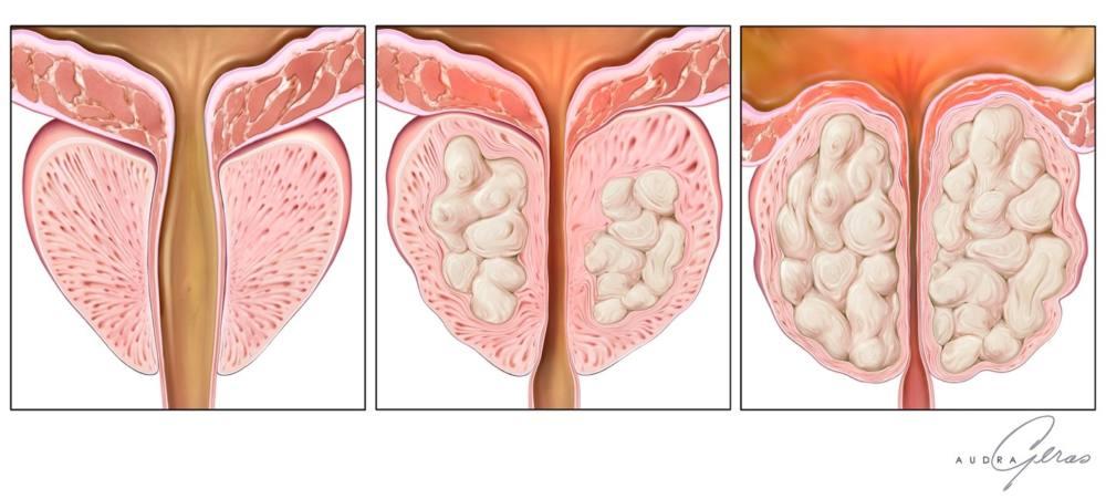 уберкулез предстательной железы-аденома простаты 2 стадия