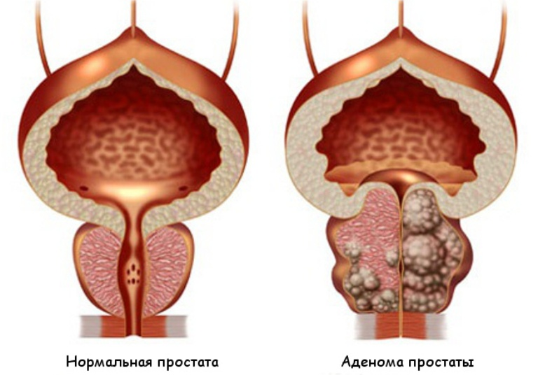 туберкулез предстательной железы-аденома простаты