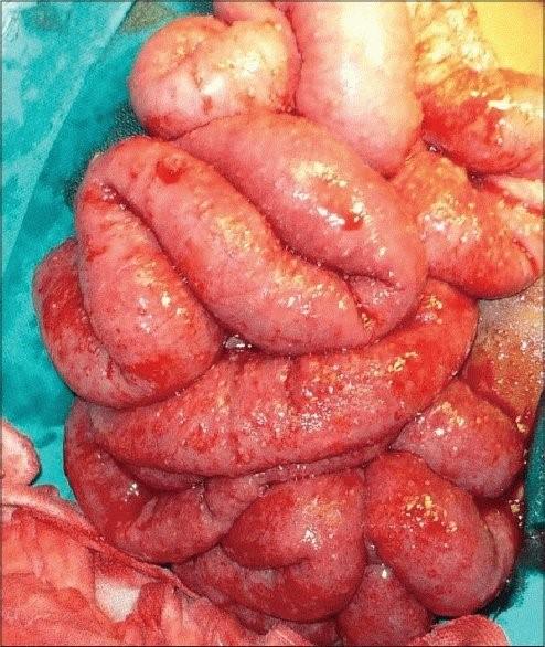 Туберкулез брюшной полости и пищеварительной системы