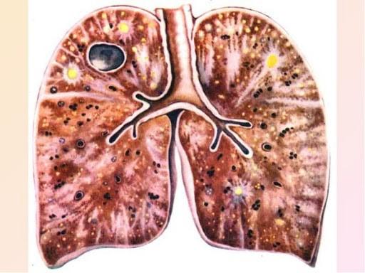 Туберкулез мозговых оболочек