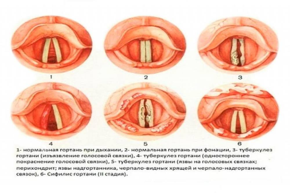 Туберкулёз гортани